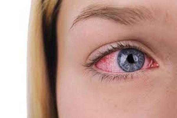 mắt đỏ khi bị sốt huyết