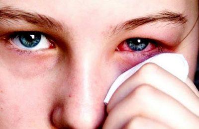 đau mắt đỏ bao lâu thì khỏi