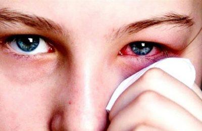 Đau mắt đỏ có được xông lá trầu không