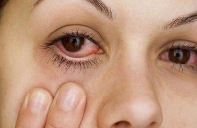 đỏ mắt sau khi thức dậy