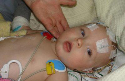 sốt xuất huyết não ở trẻ em